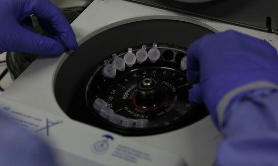 Diagnóstico laboratorial de casos suspeitos do novo coronavírus (2019-nCoV), realizado pelo Laboratório de Vírus Respiratório e do Sarampo do Instituto Oswaldo Cruz (IOC/Fiocruz), que atua como Centro de Referência Nacional em Vírus Respiratórios para o Ministério da Saúde