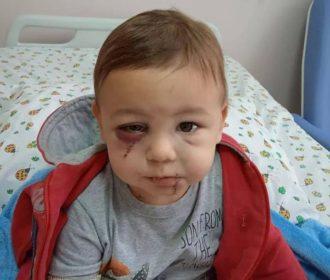 Bebê vítima de ataque a creche em SC apresenta melhoras significativas